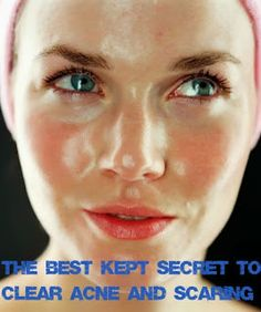 The best kept secret to get rid of acne and acne scars. It really works! Trust me... | 100% GIRLS
