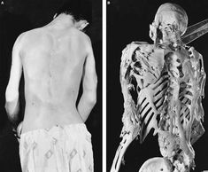 Fibrodysplasia Ossificans Progressiva (FOP for short) is a very rare disease that causes parts of the body (muscles, tendons, and ligaments) to turn to bone when they are damaged.