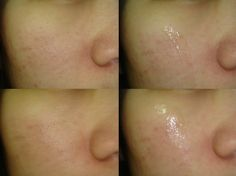 Skincare Review | SKINMISO Pore Corset Serum