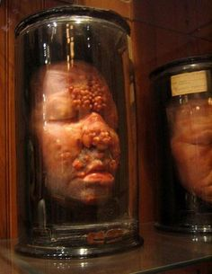 This  museum is based in Philadelphia and has a rare collection of oddities  and monstrous medical mysteries. The museum has a old stately home feel  to it, high ceilings and dark wood cabinets containing jars of preserved  human kidneys and livers. In amongst all this finery are a the Hyrtl  Skull Collection, a nine-foot-long human colon, the Soap Lady and a  two-headed baby.