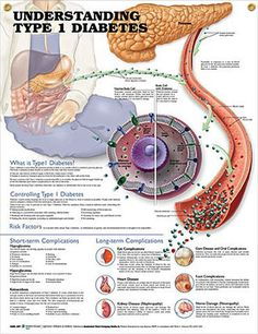 Understanding Type 1 Diabetes anatomy poster describes how Type 1 diabetes affects the process of insulin production by the pancreas.