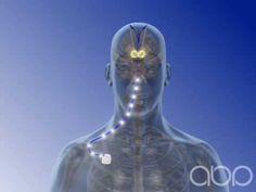 Deep Brain Stimulation - 3d Medical Animation (+playlist)