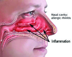 Hay Fever is the attach on your nasal passage by pollen and other air borne allergens