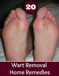 20 Wart Removal Home Remedies | Health Villas