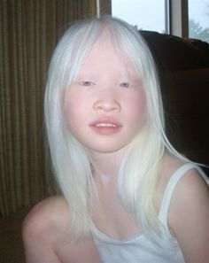 albinism in humans #10