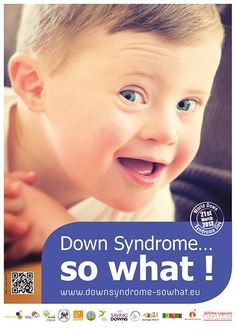 Down syndrome...so what!