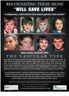 Ehler Danlos Syndrome - Vascular Type - know the signs! heart, hypermobl, edswarrior, elher danlo, ehlersdanlo syndrom, doctors, awar photo, health tidbit, ehler danlo