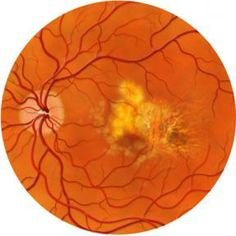 Watch Eye Complications Associated With Multiple Sclerosis video