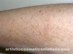 Hypo-pigmentation (De-pigmentation) Skin Camouflage-After (healed).