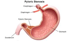 Pyloric Stenosis. Pyloric stenosis is a congenital condition characterized by hypertrophy of the pyloric sphincter. It leads to pyloric and possibly gastric obstruction. Palpation of an olive-shaped mass, discovered to the right side of the naval, is the most recognized sign of pyloric stenosis. Vomiting is usually the 1st sign,