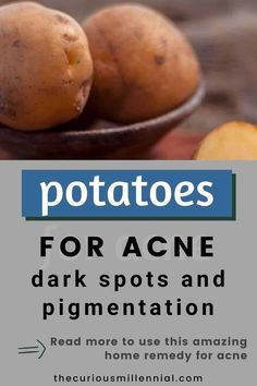 Potato can help get rid of acne scars and dark spots. Use it as a toner or blend along with any of your face masks, or freeze it to ice cubes and use it on your skin once it sets. The peels of potato and potato juice have skin bleaching properties that fade away acne scars, spots and blemishes. Let's see how to get rid of all your skin problems by using only one natural ingredient ie. potato for acne, dark spots, dark circles, and also pigmentation. #DIY #DIYBeauty #DIYSkinCare #potatoforacne