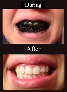 The Absolute Best Way To Whiten Teeth Naturally
