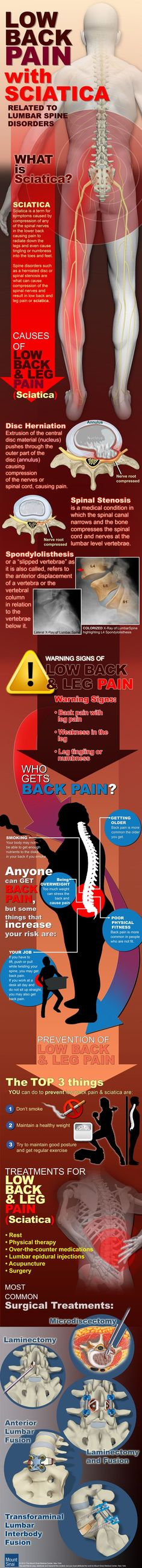 Low back pain with sciatica infographic from @MountSinaiNYC via @Pinterest