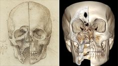 """da Vinci's anatomical drawings considered as """"hundreds of years ahead of its time"""" - (his drawing, left, made in1489)"""