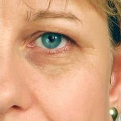 Have you found your first wrinkle yet? If you have, it is pretty certain that it is underneath or around the eye area. Find out why this should be and what you can do about it!