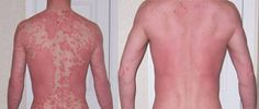 Get rid of plaque psoriasis, the most common form of psoriasis characterized by inflamed patches of redness and silvery scales on the skin.  Click here for more information on THE proven all-natural cure for plaque psoriasis - http://get-rid-of.biz/Get_Rid_Of_Psoriasis_Naturally.html