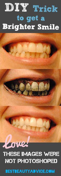 Whiten your teeth!