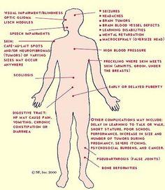 Huntington's disease   bali-reportase.blogspot.com