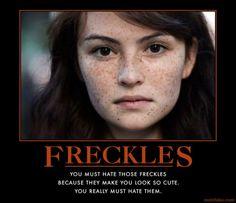 freckle faces