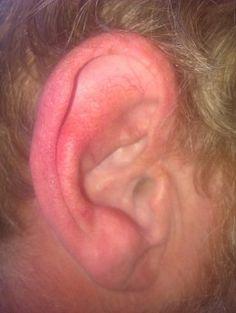 itchy ears, itchi ear, ear canal, treat