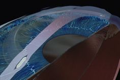 When Intacs are combined with Crosslinking, you can have a dramatic reversal of the keratoconus.