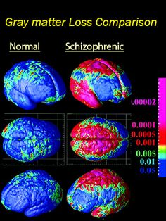 New Study Traces Abnormal Brain Development in Schizophrenia