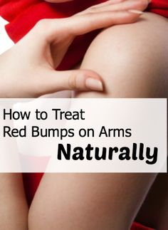 Love to get rid of those red bumps on the back of my arms. This is totally worth a try - easy and cheap!