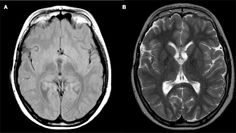Stereotactic neurosurgical treatment options for #craniopharyngioma. Published online: 14 May 2012. Read more: www.frontiersin.org