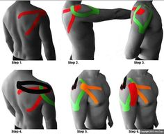 kinesio tape, kinesiology tape, kinesio taping shoulder, shoulder taping, physic therapi