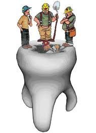 This cavity could have been prevented with a dental sealant!