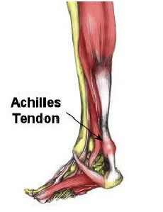 Achilles Tendonitis Causes, Picture, Symptoms And Treatment