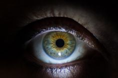 Green Eye, with Central Heterochromia,  Golden / rust coloured starburt pattern around the iris.  Central heterochromia is the presence of 2 or more colours in the same iris in this type of pattern.