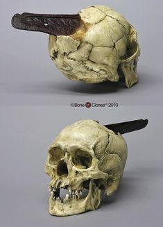 Axe head trauma via http://www.boneclones.com/