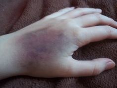 How To Create A Bruise With Makeup