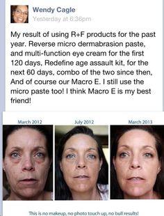 #rfskintervention #skin care #beautifulskin Rodan + Fields Dermatologists www.asavage.myrandf.com
