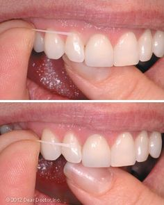 How to floss properly. When you floss, the floss should go in the space between the tooth and the gum of each tooth. In this example, the inside part of the lateral incisor tooth is being flossed. The inside part of the lateral incisor tooth will be next.