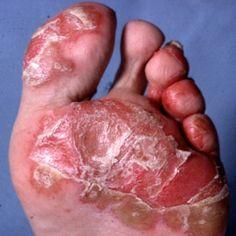 5 Main Causes Of Reactive Arthritis