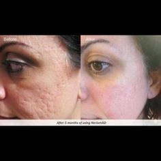 The most amazing anti aging serum ever! More