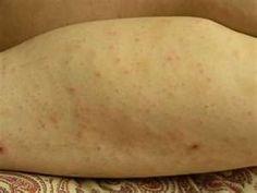 Vaginal Chafing & Razor Burn Symptoms, Causes