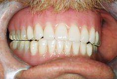 dentur adhes, partial dentur, dental dentur
