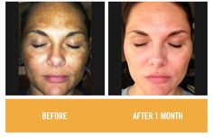 REVERSE  - Before / After Gallery of Rodan + Fields customers who use REVERSE, our product for helping sun damaged skin.