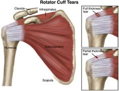"The ""rotator cuff"" is a group of 4 muscles that are responsible for keeping the shoulder joint stable. Unfortunately, injuries to the rotator cuff are very common, either from injury or with repeated overuse of the #shoulder. Find out how a physical therapist can help you avoid this injury! #physicaltherapy"