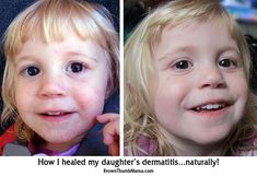See how I healed my toddler's dermatitis safely and naturally without chemical creams or pills. BrownThumbMama.com