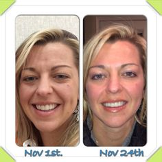 These are my own results with Nerium-AD.  My chief complaint is my under eye puffiness and forehead brow lines, notice both are nearly gone after a few short weeks.  Contact me for info. Mrsschraut@gmail.com Www.youngnskin.nerium.com
