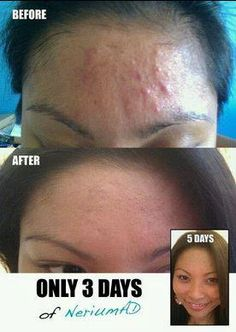 Real Results in 3 days find out how you can have the Nerium look www.vibrantme.theneriumlook.com