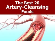 The Best 20 Artery-Cleansing Foods