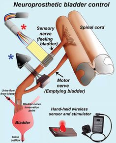 Electric Device That Tells You When to Pee |  People who suffer severe spinal cord injuries and subsequent paralysis often lose bladder control too. But a new electronic device may restore that bodily function. British neuroscientist James Fawcett and his colleagues have developed a neuroprosthetic device that replaces damaged nerves that convey the bladder's sense of fullness.