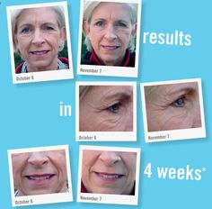 This customer was using the Rodan & Fields Anti Aging skin care for only 4 weeks