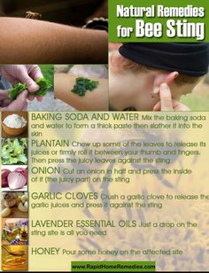 20 Soothing Home Remedies for Bee Sting