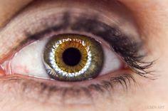 central heterochromia by Lynda